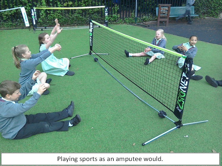 sports and amputees Mcop is extensively experienced in custom sports prosthetics and training to help active amputees pursue their passions.